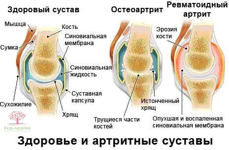 Артритные и здоровые суставы