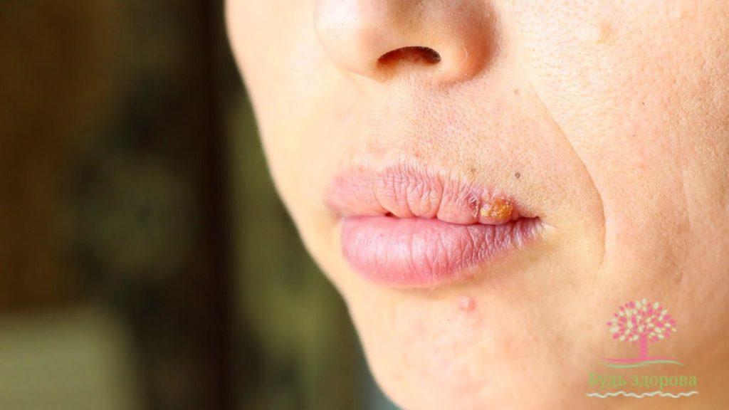 Психосоматика герпес на губах